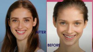 M2 før og efter test af vippeserum